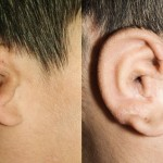 3D printed ears allow better training for surgeons