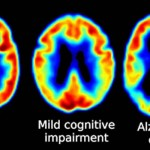 Startup uses machine learning to test for dementia