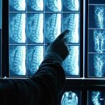 New software speeds up the analysis of medical images