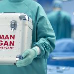 Using AI to match up organ donors
