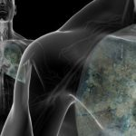 Using AI to Spot Lung Cancer