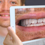 Using AR To Show The Results Of Dental Work