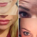 The Wild West of plastic surgery on Instagram
